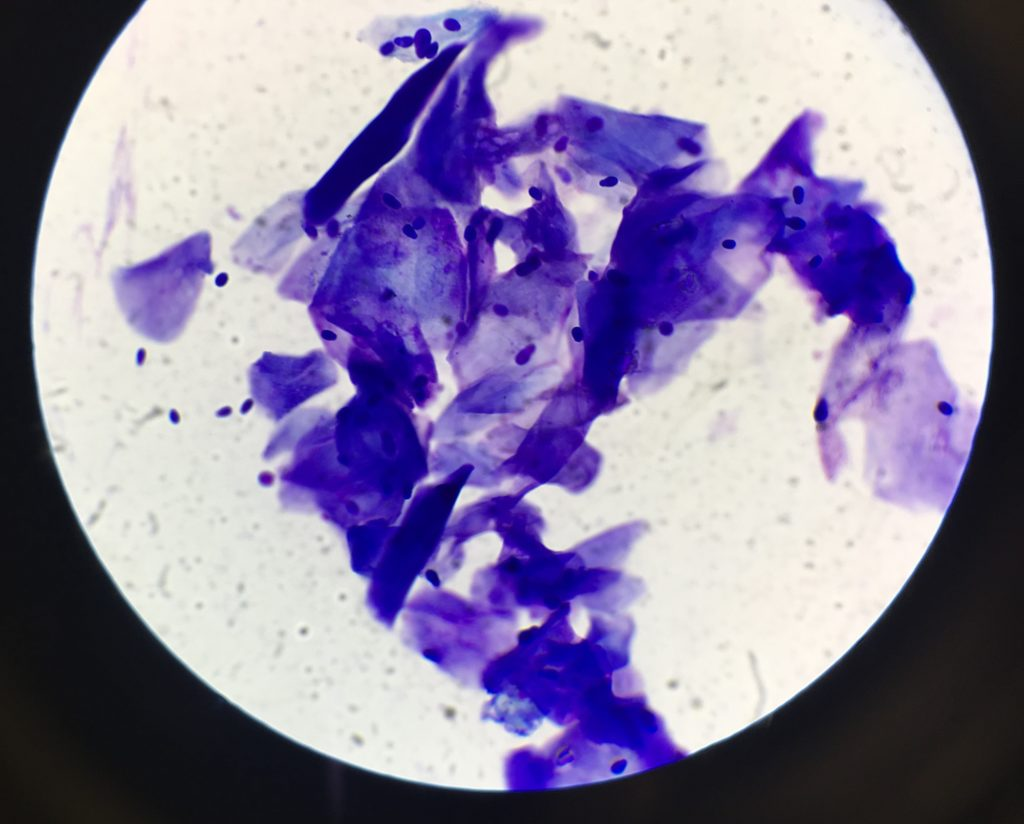 Yeast on cytology